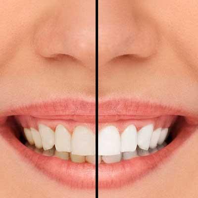 cos'è lo sbiancamento dentale