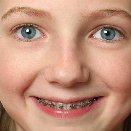 Cosa fare quando i denti dei bambini/ragazzi sono storti?