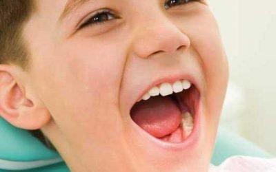 I denti da latte cariati vanno curati anche se poi cadranno?