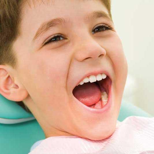 Perché sono importanti i denti da latte e perché è importante curarli anche se cadranno?