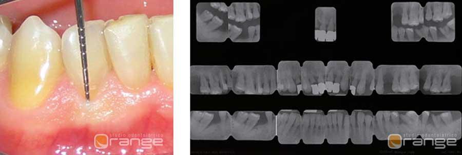 la piorrea malattia parodontale
