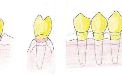 Come risolvere la Parodontite