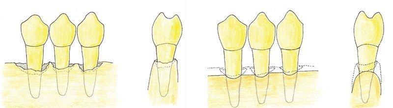interventi di chirurgia parodontale