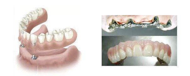 dentiera in buone condizioni