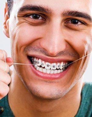 denti storti e/o affollati