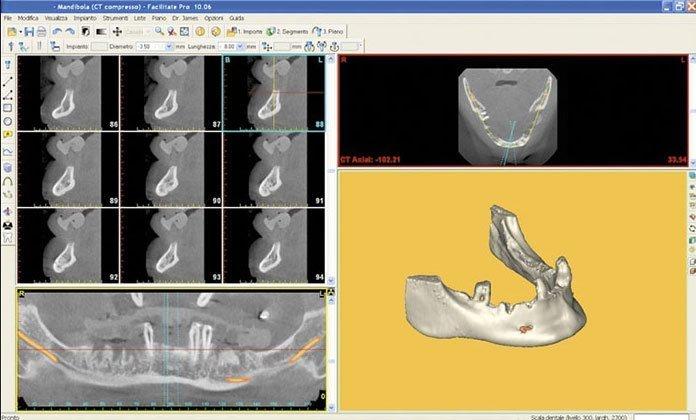 tac esempi di radiografia