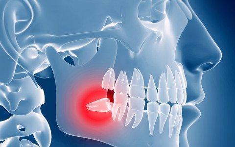 estrazioni o rimozioni di denti o radici