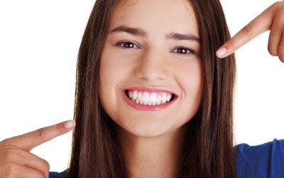 Voglio un sorriso più bianco