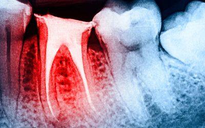 Devo devitalizzare un dente