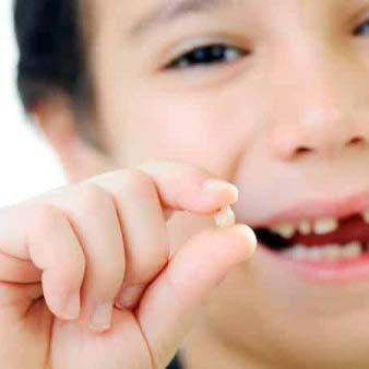 cosa fare quando si rompe un dente