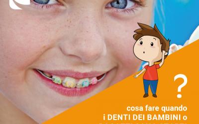 Cosa fare quando i denti dei bambini sono storti?