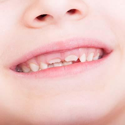 i denti servono da guida