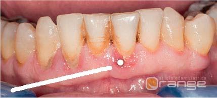 igiene orale gengivite