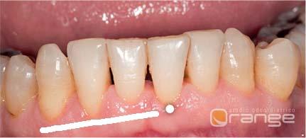 cause cattiva iigiene orale