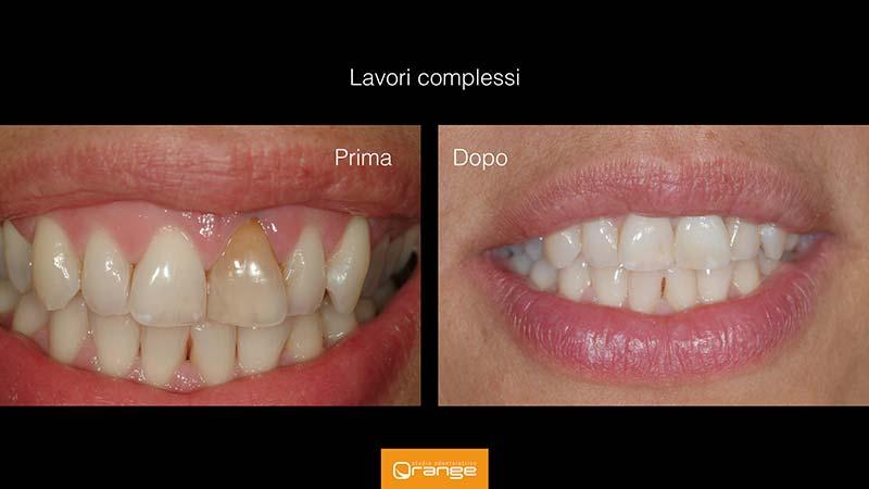 casi clinici di odontoiatria estetica - - studio dentistico Orange Maron di Brugnera Pordenone