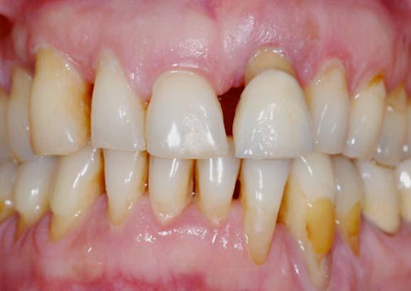 piorrea malattia parodontale