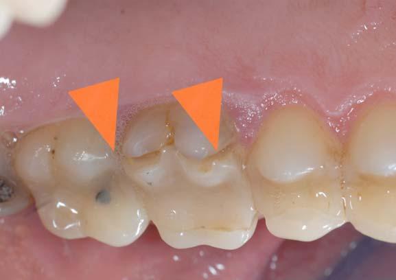 frattura e usura dei denti