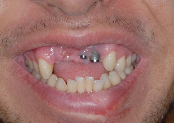 fratture dentali dovute a traumi