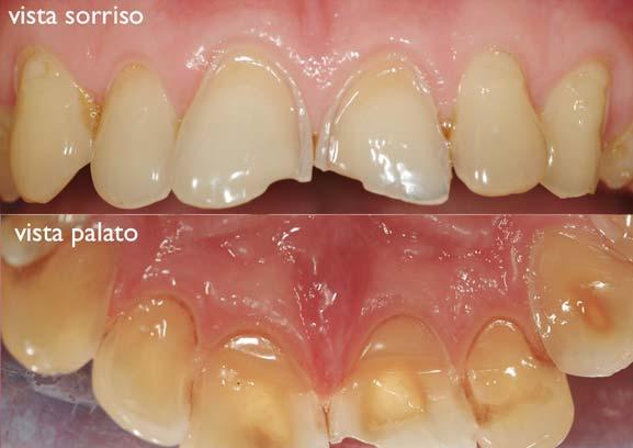grave usura dello smalto del dente