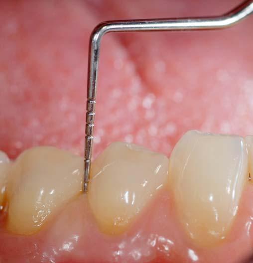 la sonda parodontale