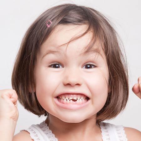 La rottura di un dente: va sempre valutata dall'odontoiatra?
